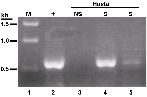 First Report of <i>Tomato spotted wilt virus</i> in Hosta in Florida