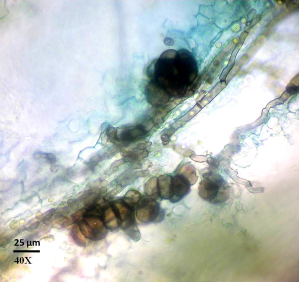 Histological Evidence that Microsclerotia Play a Significant Role in Disease Cycle of the Boxwood Blight Pathogen in Southeastern United States and Implications for Disease Mitigation
