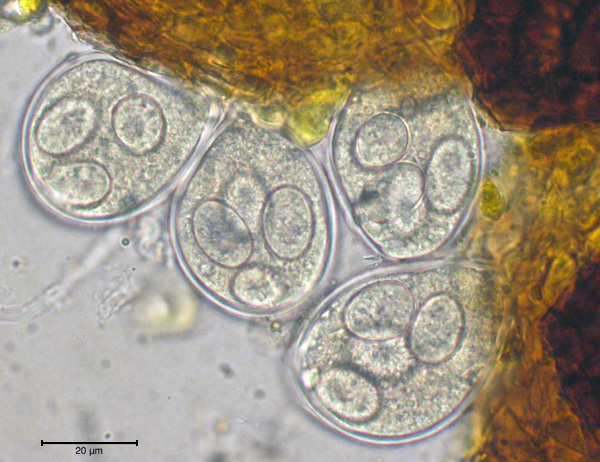 First Report of Powdery Mildew (<i>Microsphaera palczewskii</i>) on Siberian Peashrub in Montana