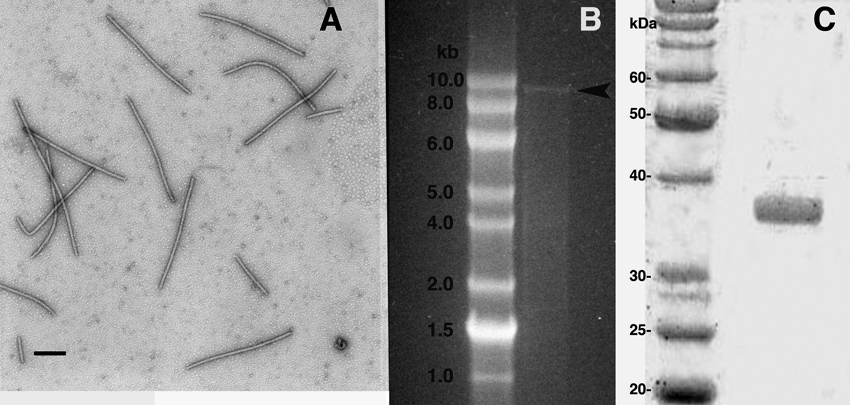 Identification, Transmission, and Partial Characterization of a Previously Undescribed Flexivirus Causing a Mosaic Disease of Ash (<i>Fraxinus</i> spp.) in the USA