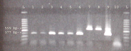 Detecting Single Seeds of Small Broomrape (<i>Orobanche minor</i>) with a Polymerase Chain Reaction
