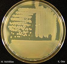 Corynebacterium striatum Chronic infection of a cutaneous
